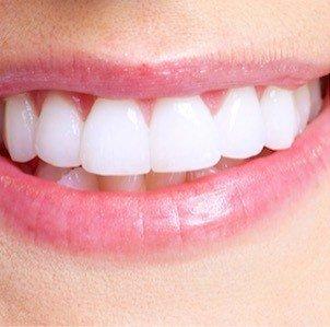smilebrite